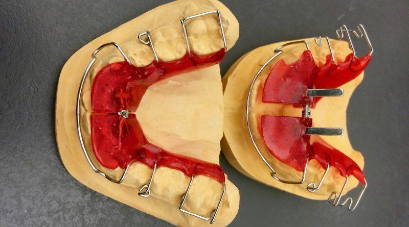 Jak długo trwa leczenie aparatem ortodontycznym?