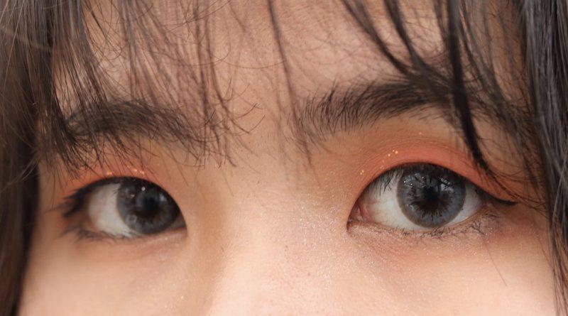 Zespół suchego oka – objawy i leczenie